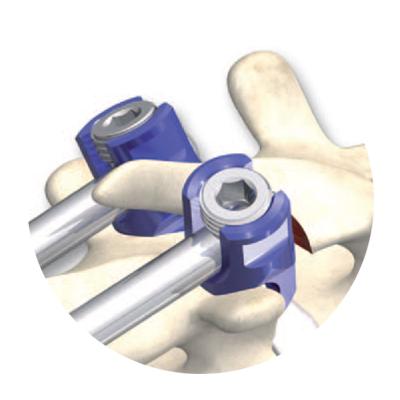 sistema de tornillos ortopedicos monopoly deformity