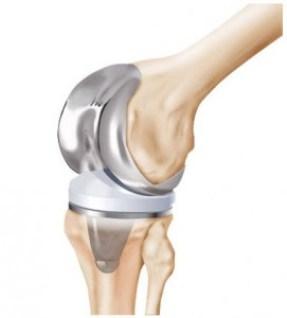Sistemas de prótesis para rodilla