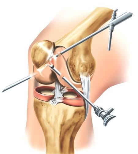 artroscopia total de rodilla