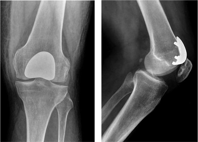 Prótesis de rodilla zayago
