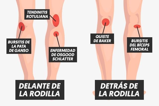 Dolor de rodilla.