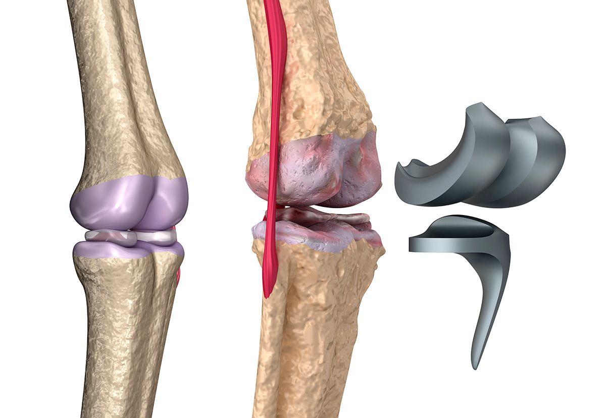 Prótesis de rodilla en Tijuana.