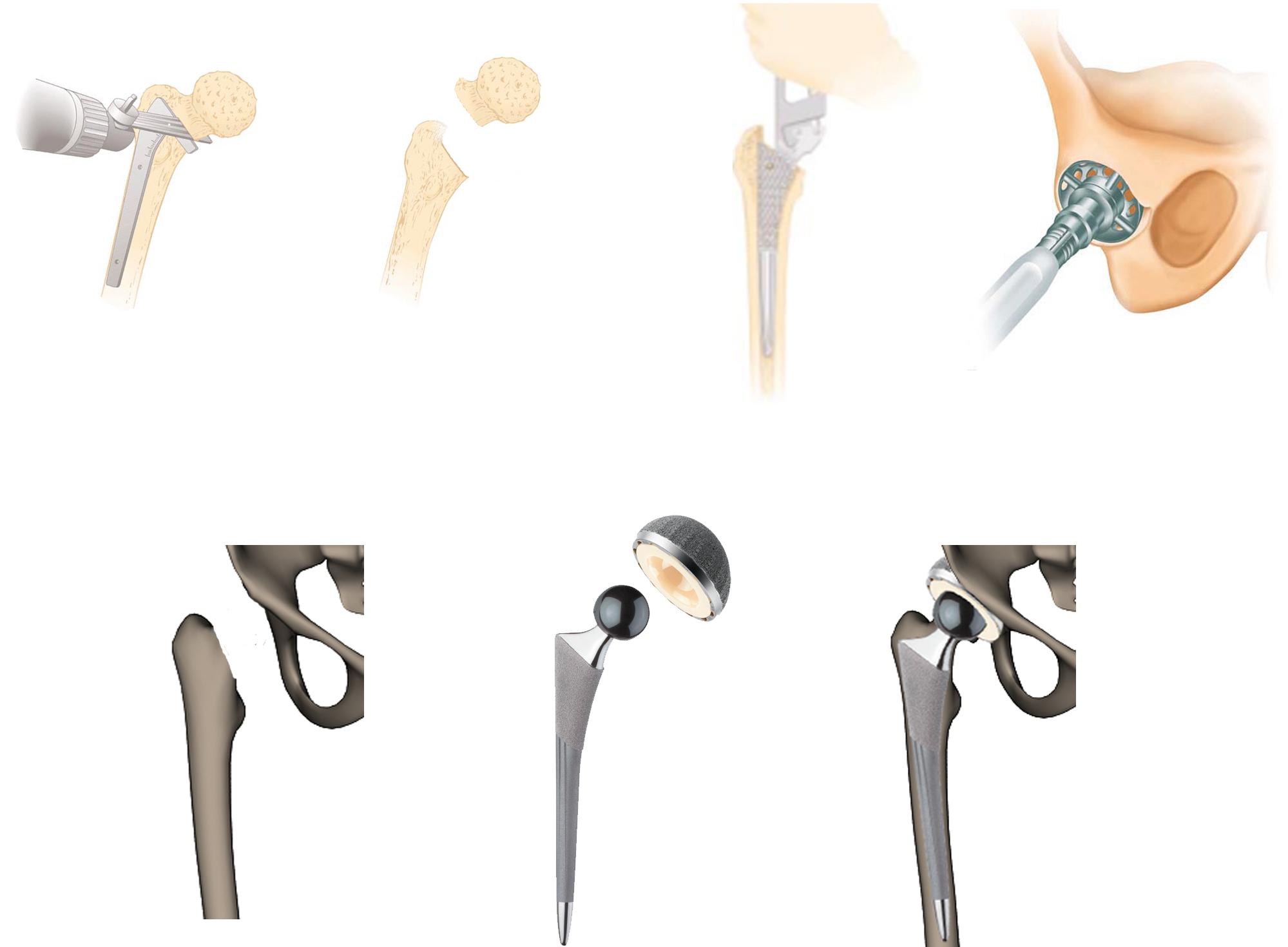 Prótesis de cadera en México