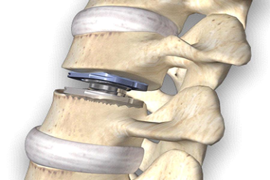 Implantes cervicales zayago